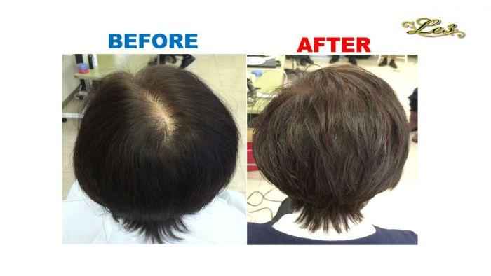 日本人におすすめサロン「ルトワ」の増毛で薄毛の悩みを解決‼ 最高ランクの増毛施術をホーチミンで!