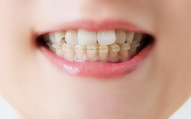 ホーチミンで歯科矯正なら【ありが歯科】がおすすめ!! ,ホーチミン,歯科,矯正,おすすめ,ありが